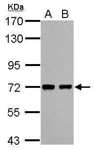 HCC1 Antibody in Western Blot (WB)