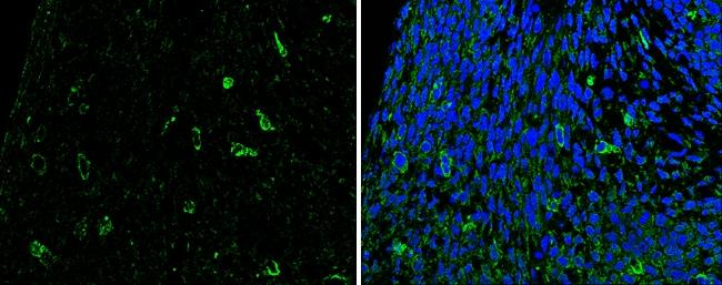 SLIT2 Antibody in Immunohistochemistry (Paraffin) (IHC (P))