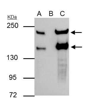 SLIT2 Antibody in Immunoprecipitation (IP)