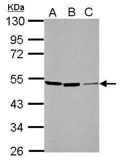 PIP4K2A Antibody in Western Blot (WB)