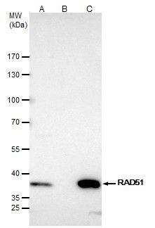 RAD51 Antibody in Immunoprecipitation (IP)