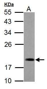 ADI1 Antibody in Western Blot (WB)