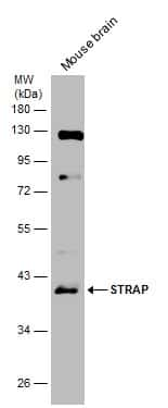 STRAP Antibody in Western Blot (WB)