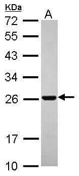 RAB11B Antibody in Western Blot (WB)