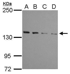 WDR19 Antibody in Western Blot (WB)