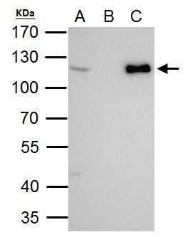 CHD1L Antibody in Immunoprecipitation (IP)