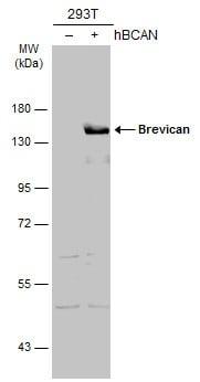 Brevican Antibody in Western Blot (WB)