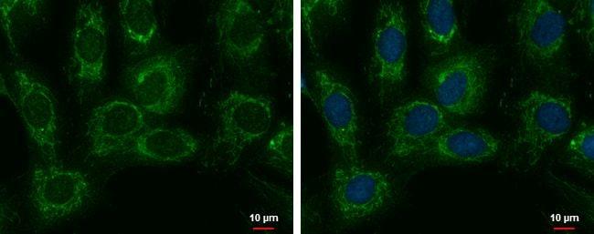 SARS2 Antibody in Immunofluorescence (IF)