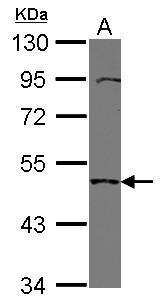 TMPRSS11B Antibody in Western Blot (WB)