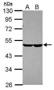 CHST7 Antibody in Western Blot (WB)