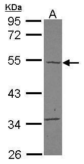 Carabin Antibody in Western Blot (WB)