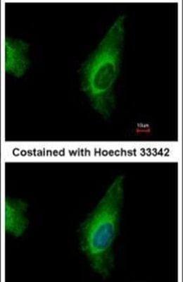 ORP8 Antibody in Immunofluorescence (IF)