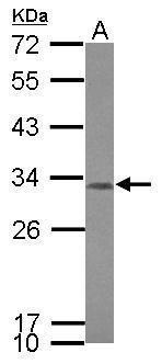 CCDC44 Antibody in Western Blot (WB)