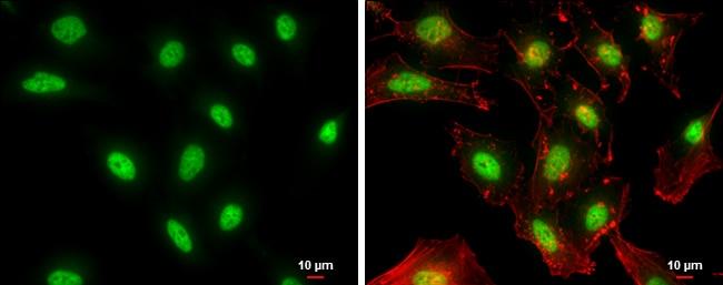NFYB Antibody in Immunocytochemistry (ICC/IF)