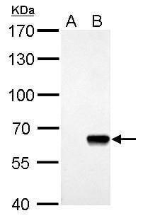 AKT Pan Antibody in Western Blot (WB)