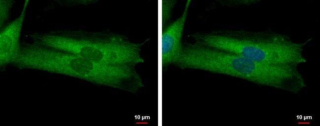 MYO19 Antibody in Immunofluorescence (IF)