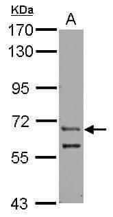ZFY Antibody in Western Blot (WB)