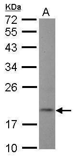 NT5C Antibody in Western Blot (WB)