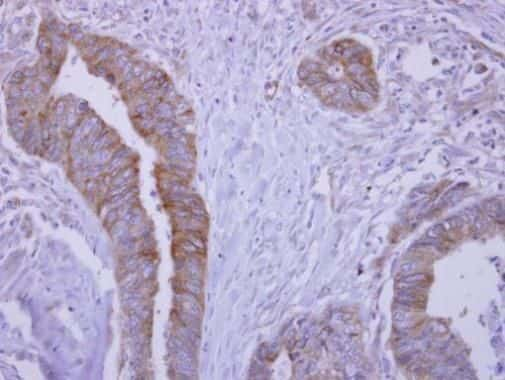 SLA/LP Antibody in Immunohistochemistry (Paraffin) (IHC (P))