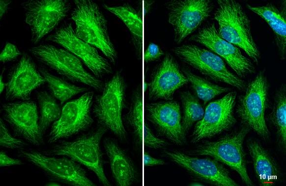 GEF-H1 Antibody in Immunocytochemistry (ICC)