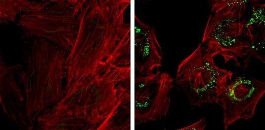 LC3B Antibody in Immunofluorescence (IF)