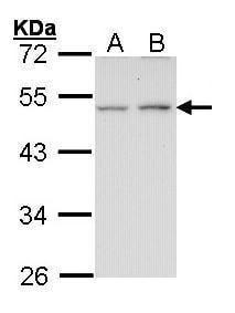 Endothelin B Receptor Antibody in Western Blot (WB)