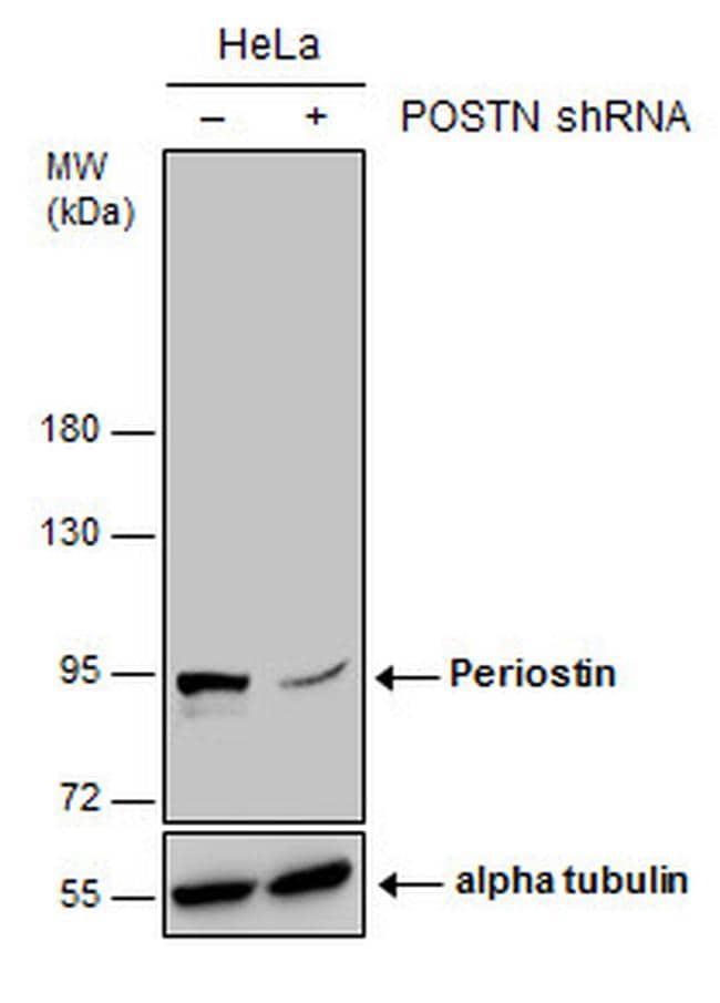 Periostin Antibody in Knockdown
