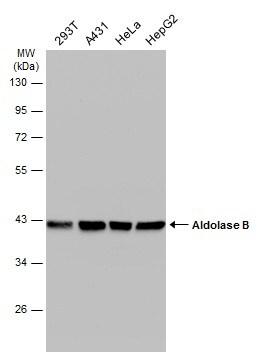 Aldolase B Antibody in Western Blot (WB)