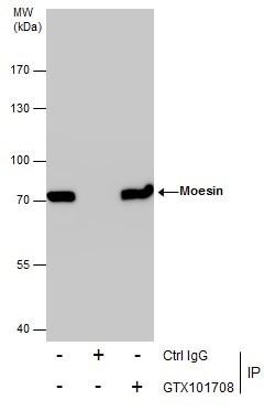 Moesin Antibody in Immunoprecipitation (IP)