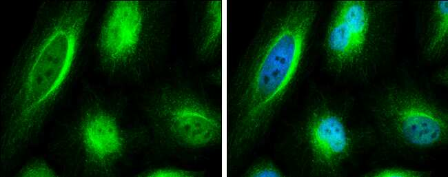 C6orf97 Antibody in Immunocytochemistry (ICC)