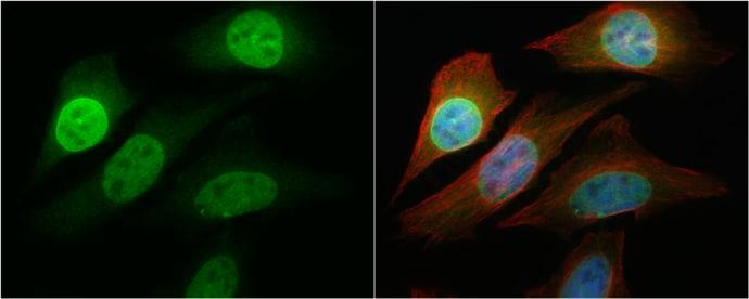 NFkB p65 Antibody in Immunocytochemistry (ICC/IF)