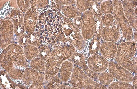 NFkB p65 Antibody in Immunohistochemistry (Paraffin) (IHC (P))