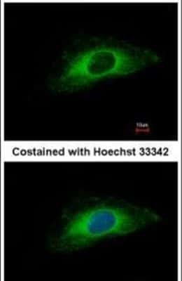 Cytokeratin 7 Antibody in Immunofluorescence (IF)