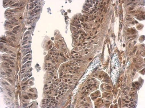 SMAD3 Antibody in Immunohistochemistry (Paraffin) (IHC (P))