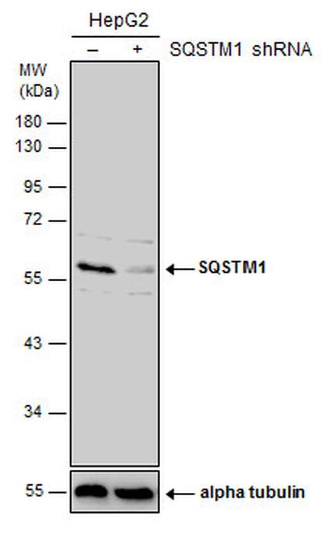 SQSTM1 Antibody in Knockdown