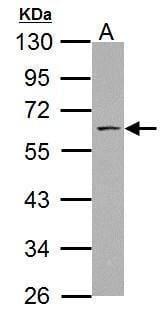 ABI1 Antibody in Western Blot (WB)