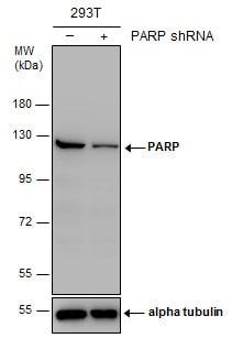 PARP1 Antibody in Knockdown