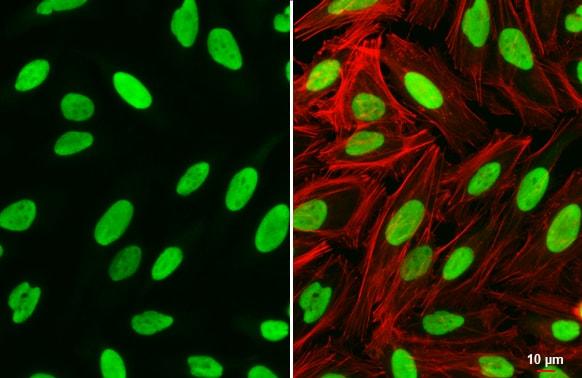 PARP1 Antibody in Immunocytochemistry (ICC)
