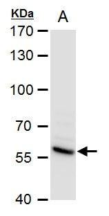 SMAD4 Antibody in Western Blot (WB)