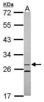 15-PGDH Antibody in Western Blot (WB)