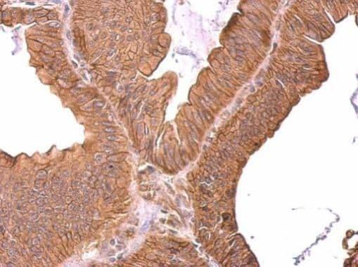 ROBO1 Antibody in Immunohistochemistry (Paraffin) (IHC (P))