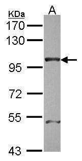 NUP98 Antibody in Western Blot (WB)