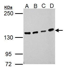 USP7 Antibody in Western Blot (WB)