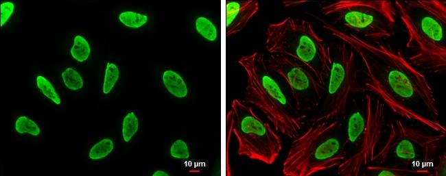 hnRNP A2B1 Antibody in Immunocytochemistry (ICC)