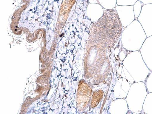 ATOH7 Antibody in Immunohistochemistry (Paraffin) (IHC (P))