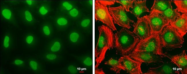 Histone H1.3 Antibody in Immunocytochemistry (ICC)