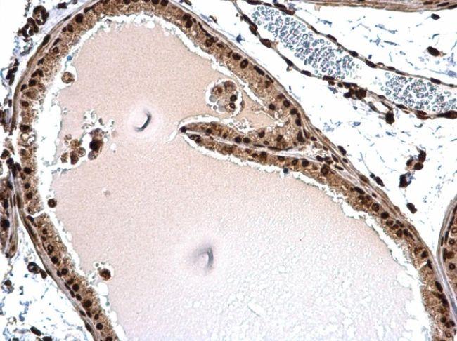 Histone H1.3 Antibody in Immunohistochemistry (Paraffin) (IHC (P))