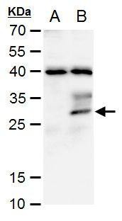 STC1 Antibody in Western Blot (WB)