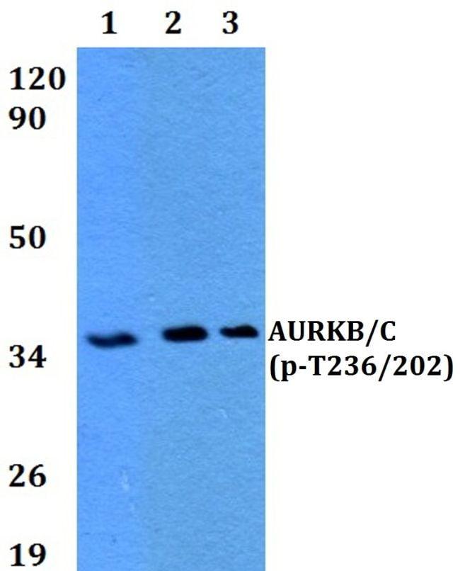 Phospho-Aurora B/C (Thr236, Thr202) Antibody in Western Blot (WB)