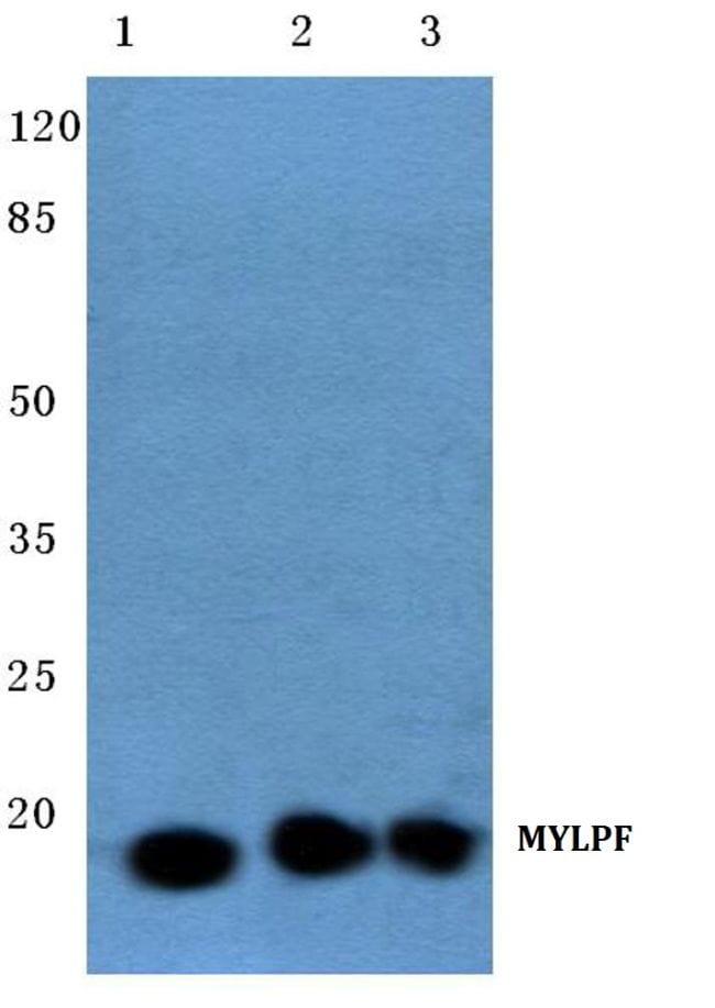 MYLPF Antibody in Western Blot (WB)